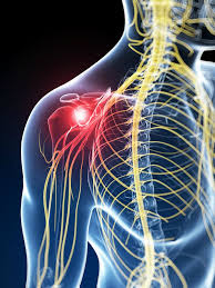 Nerve Pain – what it does to you…